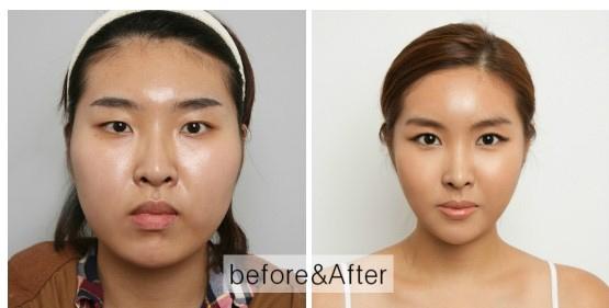 Asian Eyelid Surgery NYC - Fort Lee NJ - Blepharoplasty
