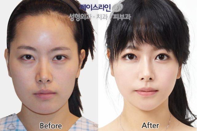Пластическая операция век до и после